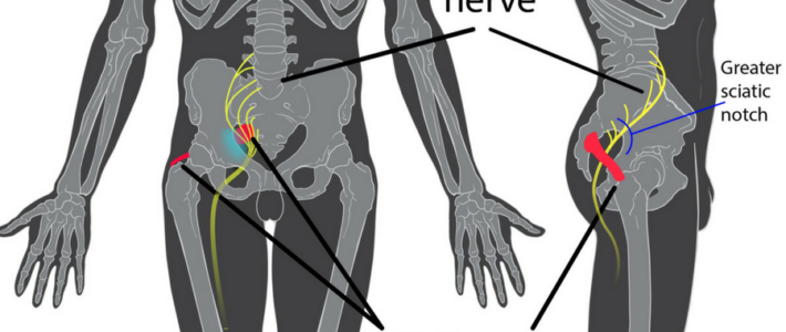 How Do I Relieve Sciatic Nerve Pain