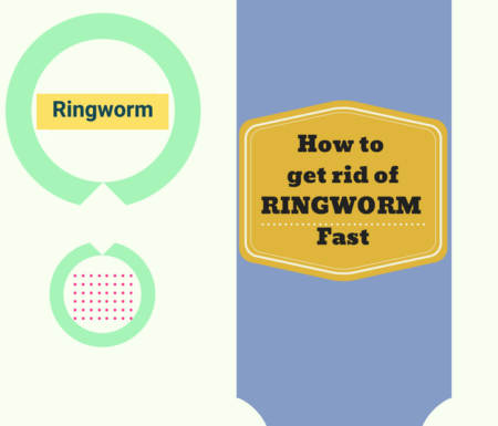59 How To Get Rid Of Ringworm Fast Naturally Power To